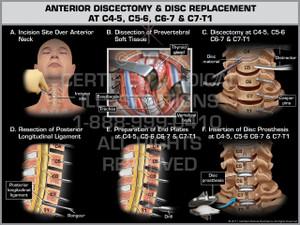 Exhibit of Anterior Discectomy & Disc Replacement at C4-5, C5-6, C6-7 & C7-T1