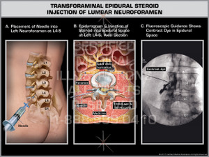 Exhibit of Transforaminal Epidural Steroid Injection of Lumbar Neuroforamen- Print Quality Instant Download