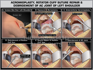 Exhibit of Acromioplasty, Rotator Cuff Suture Repair & Debridement of AC Joint of Left Shoulder- Print Quality Instant Download