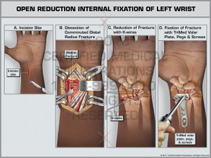 Exhibit of Open Reduction Internal Fixation of Left Wrist- Print Quality Instant Download
