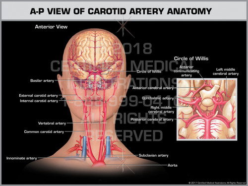 Exhibit of A-P View of Carotid Artery Anatomy- Print Quality Instant Download