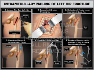Exhibit of Intramedullary Nailing of Left Hip Fracture