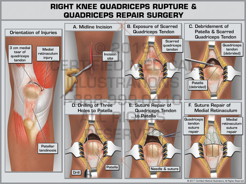 Exhibit of Right Knee Quadriceps Rupture & Quadriceps Repair Surgery