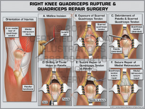 Exhibit of Right Knee Quadriceps Rupture & Quadriceps Repair Surgery- Print Quality Instant Download