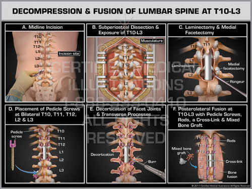 Exhibit of Decompression & Fusion of Lumbar Spine at T10-L3- Print Quality Instant Download