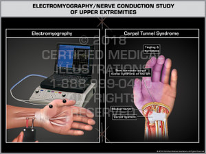 Exhibit of Electromyography/ Nerve Conduction Study of Upper Extremities- Print Quality Instant Download