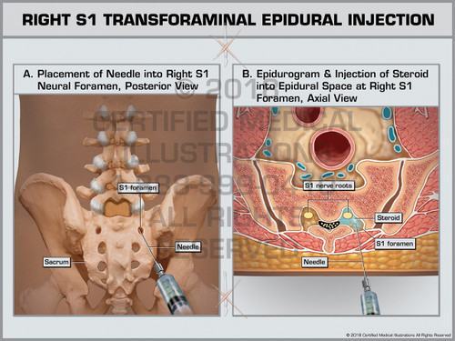 Exhibit of Right S1 Transforaminal Epidural Injection