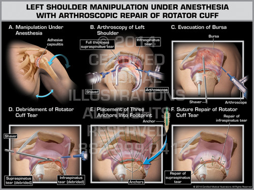 Exhibit of Left Shoulder Manipulation Under Anesthesia with Arthroscopic Repair of Rotator Cuff.