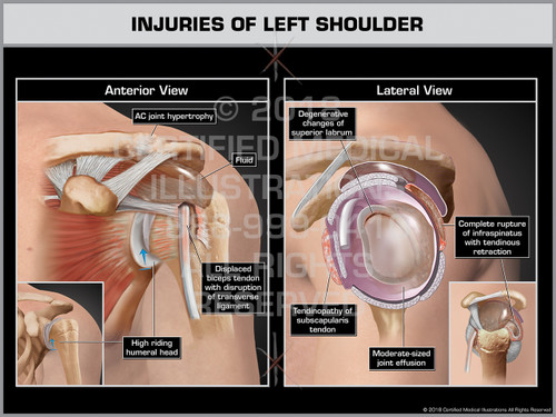 Injuries of Left Shoulder