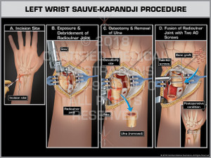 Left Wrist Sauve-Kapandji Procedure