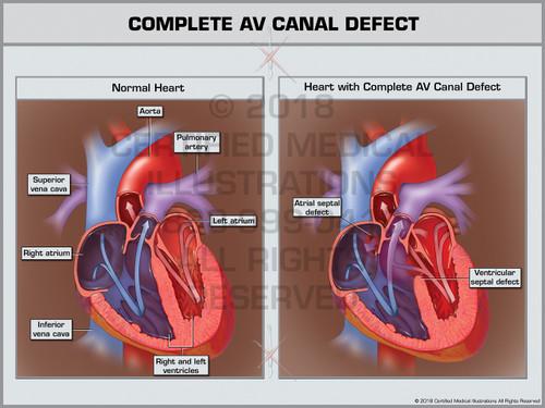 Complete AV Canal Defect