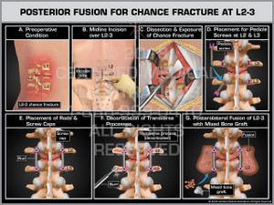 Posterior Fusion for Chance Fracture at L2-3