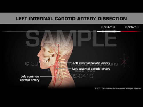 Left Internal Carotid Artery Dissection