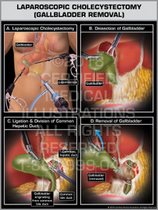 Laparoscopic Cholecystectomy (Gallbladder Removal) without Cystic Duct - Print Quality Instant Download