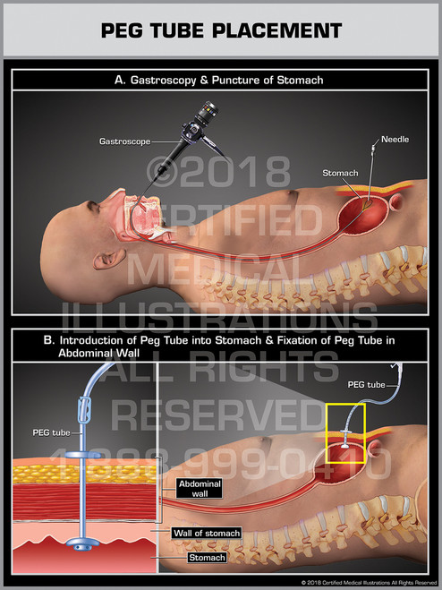 PEG Tube Placement (Percutaneous Endoscopic Gastrostomy) - Print Quality Instant Download