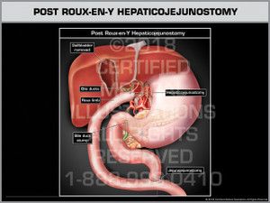 Post Roux-en-Y Hepaticojejunostomy