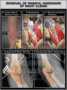 Removal of Painful Hardware of Right Elbow - Print Quality Instant Download
