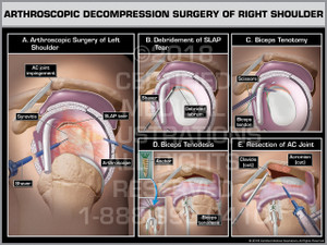 Arthroscopic Decompression Surgery of Right Shoulder - Print Quality Instant Download