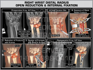 Right Wrist Distal Radius Open Reduction & Internal Fixation - Print Quality Instant Download