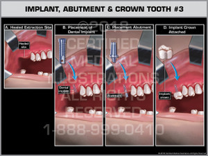 Implant, Abutment & Crown Tooth #3 - Print Quality Instant Download