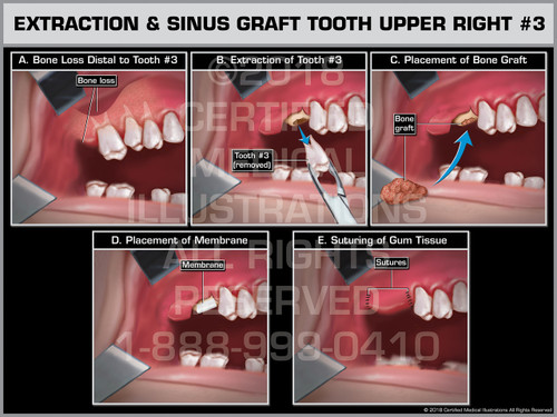 Extraction & Sinus Graft Tooth Upper Right #3 - Print Quality Instant Download