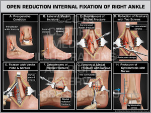 Open Reduction Internal Fixation of Right  Ankle - Print Quality Instant Download