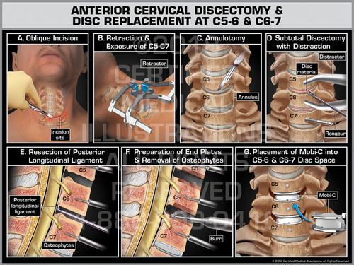 Anterior Cervical Discectomy & Disc Replacement at C5-6 & C6-7 - Print Quality Instant Download