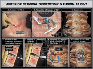 Anterior Cervical Discectomy & Fusion at C6-7 - Print Quality Instant Download