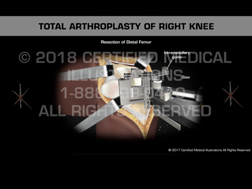 Total Arthroplasty of the Right Knee - Medical Animation
