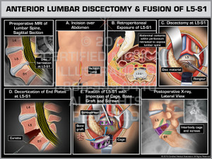 The exhibit illustrates an anterior lumbar discectomy and fusion of the L5-S1 level. The preoperative MRI depicts the disc herniation impinging the thecal sac. The surgery is started with the incision over the abdomen. The abdominal contents within the peritoneum are retracted to expose the lumbar spine. The L5-S1 is incised and followed by a discectomy to remove all disc material. The end plates are decorticated with a curette. Fixation of L5-S1is completed with the impaction of cage, bone graft and screws. Finally the postoperative x-rays show the surgical hardware from the lateral view.