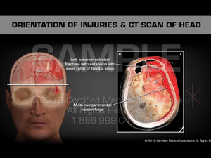 This animation features traumatic head injuries. Multiple CT Scans are colorized depicting the following injuries; Multi-compartmental intracranial hemorrhage, significant left to right midline shift, Multi-compartmental hemorrhage, Left anterior calvarial fracture with extension into inner table of frontal sinus, Left orbital fracture with extension into outer & inner table of the left frontal sinus.