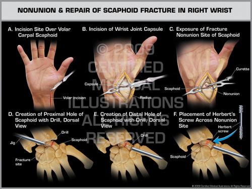 Exhibit of Nonunion & Repair of Scaphoid Fracture in Right Wrist.