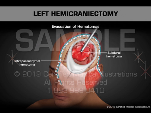 This animation features a left hemicraniectomy. An orientation of the following injuries are depicted; multiple lacerations of eyebrow and scalp, subdural hematoma, frontal sinus fracture, intraparenchymal hematoma. The surgical steps include the following; placement of temporary staples to wounds, incision, creation of myocutaneous skin flap, creation of burr holes, craniotomy, removal of large hemicraniectomy flap, cranialization of left frontal air sinus, opening of dura, evacuation of hematomas, decompression of middle fossa, irrigation, placement of Intracranial pressure monitor, placement of JP drain, dura replaced and placement of Gore-Tex, closure of surgical wound and suture repair of scalp wound and left eyebrow wound.
