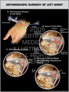 Exhibit of Arthroscopic Surgery of Left Wrist.