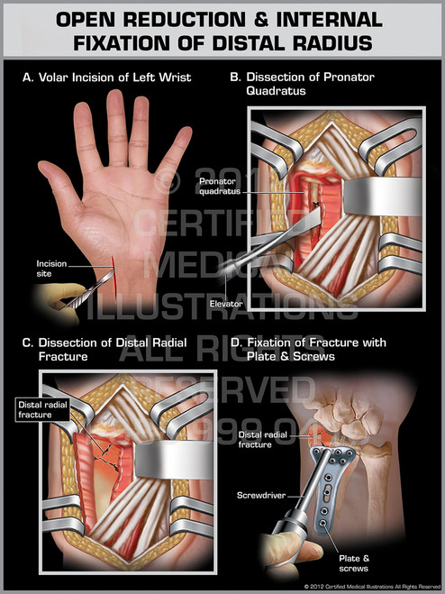 Exhibit of Open Reduction & Internal Fixation of Distal Radius.