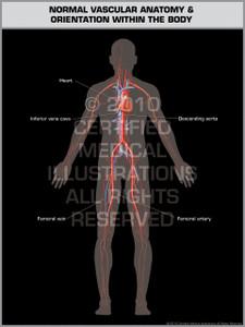 Exhibit of Normal Vascular Anatomy & Orientation (Male).