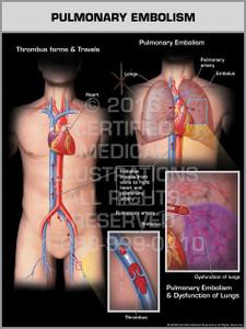 Exhibit of Pulmonary Embolism Male.