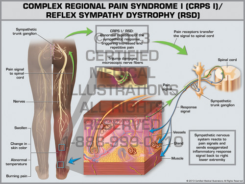 Exhibit of Complex Regional Pain Syndrome I (CRPS I)/ Reflex Sympathy Dystrophy (RSD).