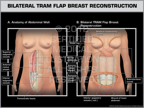 Exhibit of Bilateral Tram Flap Breast Reconstruction.