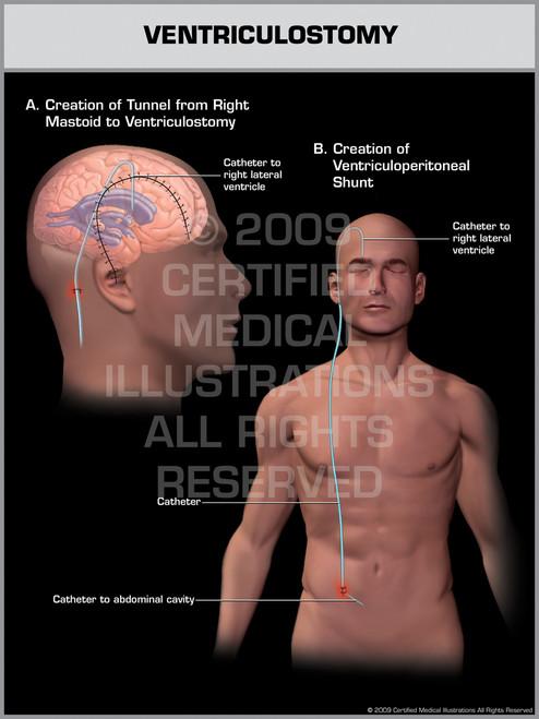 Exhibit of Ventriculostomy Male.