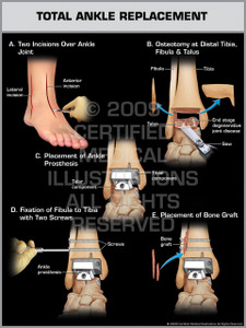 Exhibit of Total Ankle Replacement.