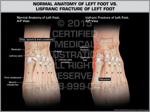 Exhibit of Normal Anatomy of Left Foot vs. Lisfranc Fracture of Left Foot.