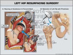 Exhibit of Left Hip Resurfacing Surgery.