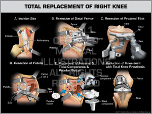 Exhibit of Total Replacement of Right Knee.