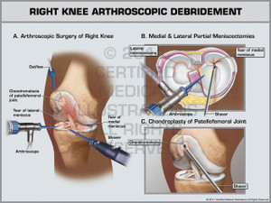 Exhibit of Right Knee Arthroscopic Debridement.