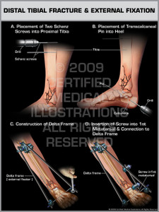 Exhibit of Distal Tibial Fracture & External Fixation.