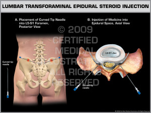 Exhibit of Lumbar Transforaminal Epidural Steroid Injection.