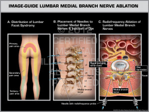 Exhibit of Image-Guide Lumbar Medial Branch Nerve Ablation Female.