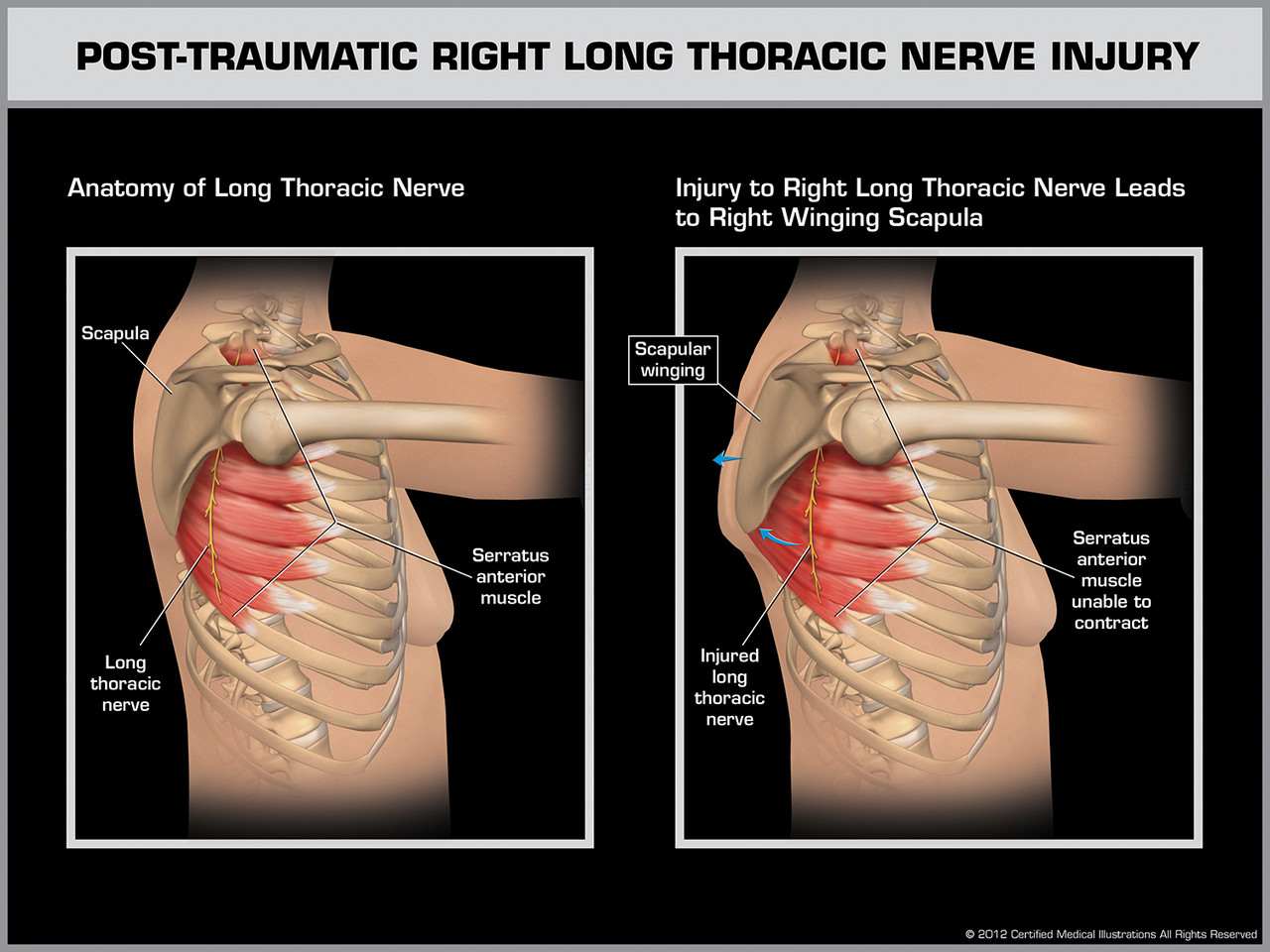 Post Traumatic Right Long Thoracic Nerve Injury