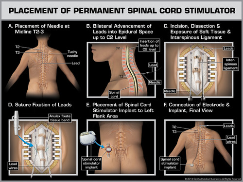 Exhibit of Placement of Permanent Spinal Cord Stimulator.